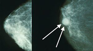 Mammograms of breast